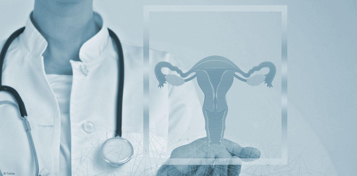 laparoscopia-urero-HLA-Jerez-Puerta-del-Sur