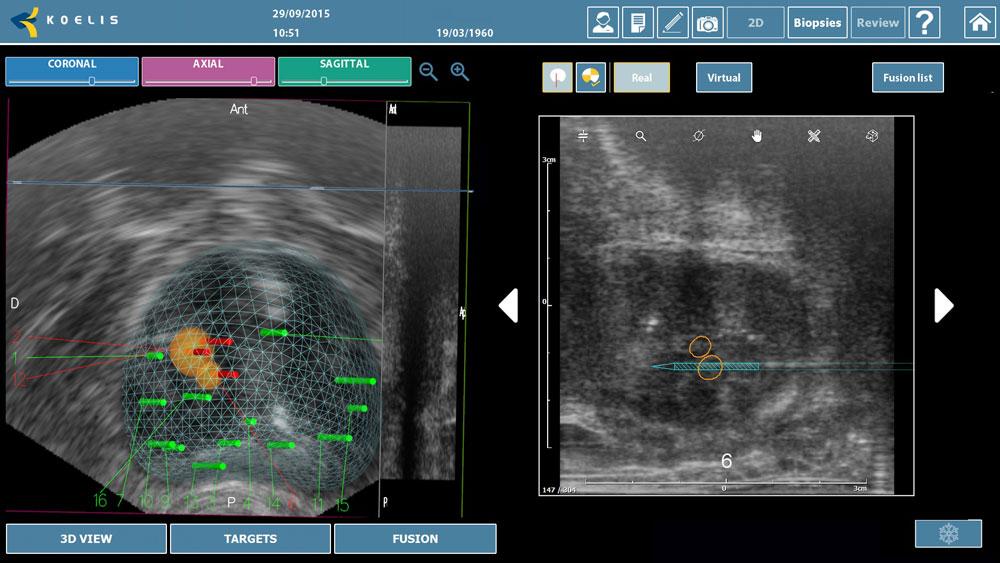Imagen ecográficas en alta resolución del cartógrafo prostático 3D del hospital HLA Moncloa.