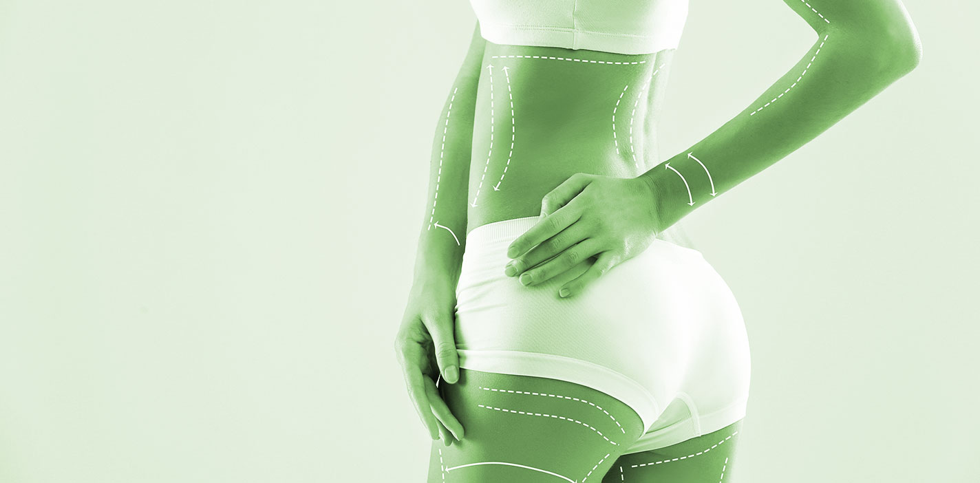 La clínica HLA Los Naranjos incorpora a su cartera de servicios la cirugía del contorno corporal para recuperar la figura tras perder peso